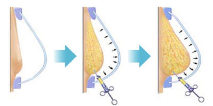 lipofilling seins montpellier