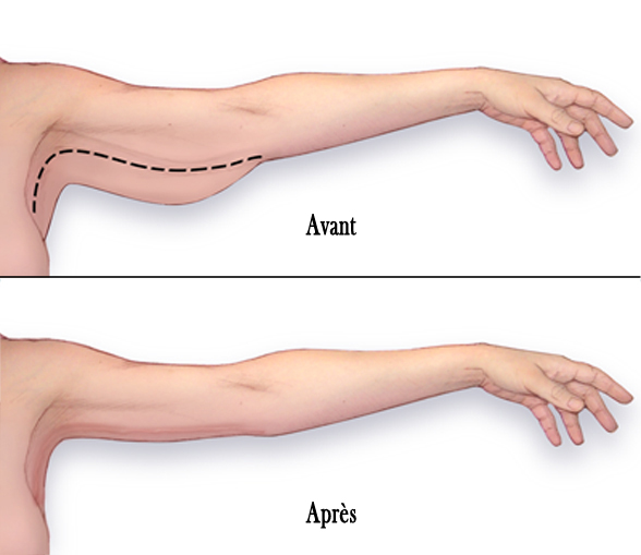 chirurgie esthetique bras montpellier