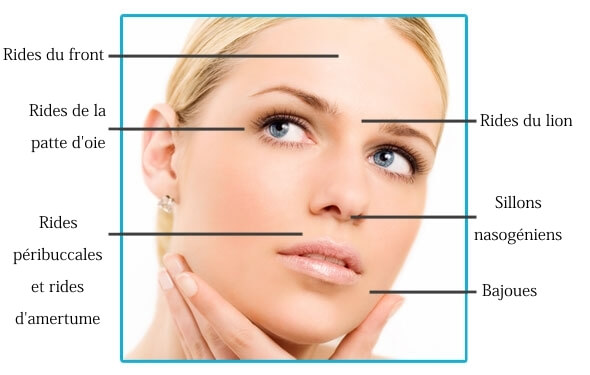 injection botox montpellier
