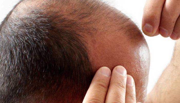 greffe cheveux montpellier